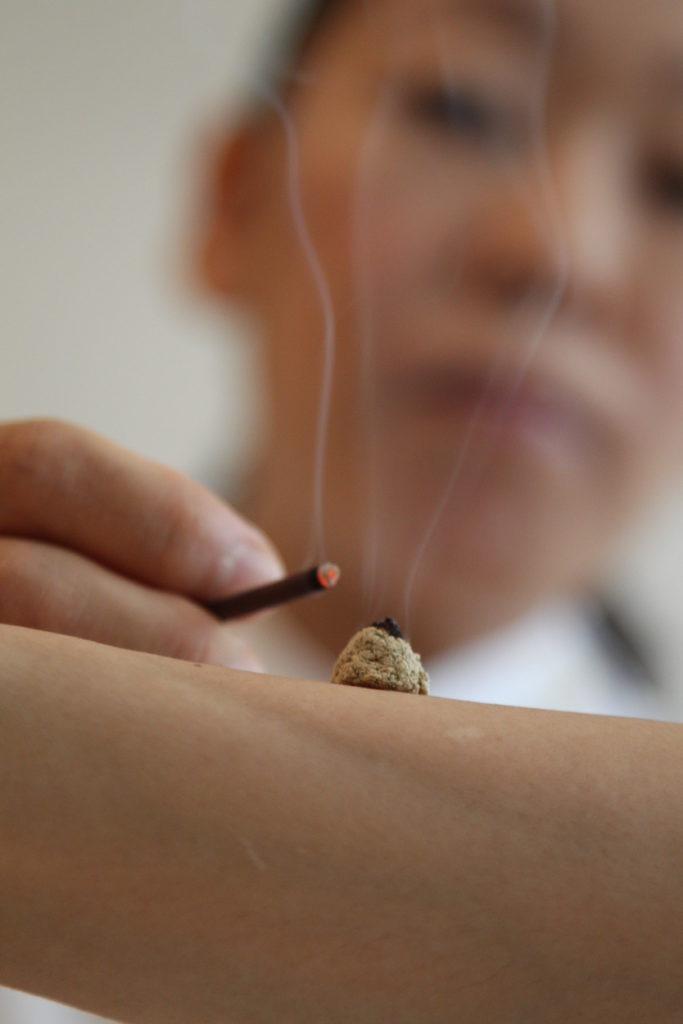 知熱灸と線香
